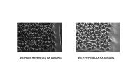 Hyperflex NX Imaging